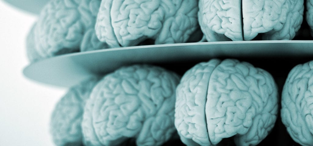 A shelf stacked with medical models of the human brain.